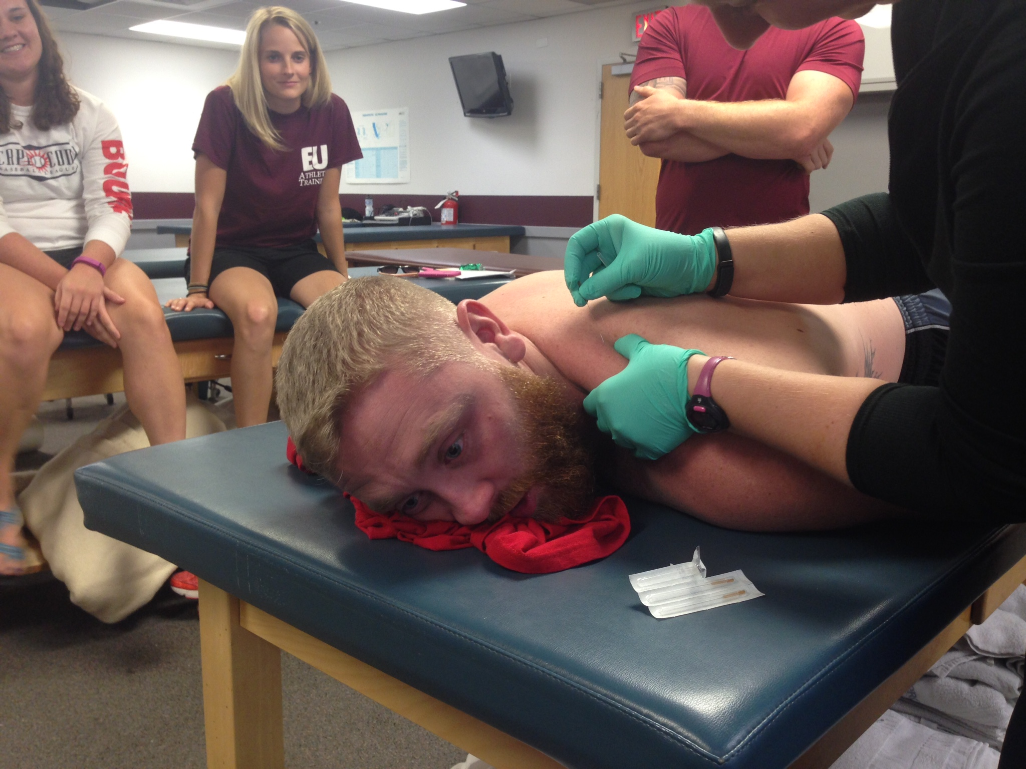 Dry Needling in ATC 632 Manual Therapies